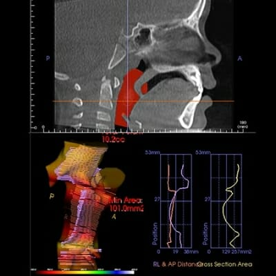 three dimensional radiography